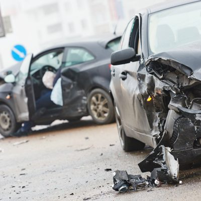 tmj-after-a-car-accident